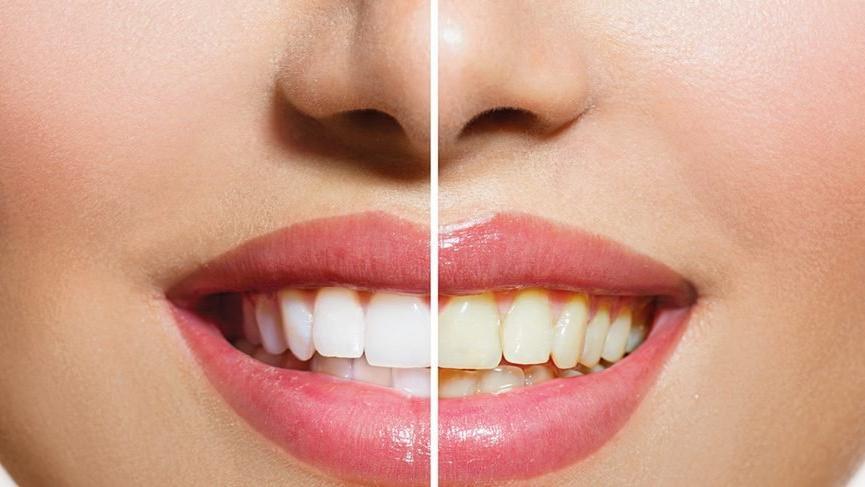 evde diş temizliği nasıl yapılır