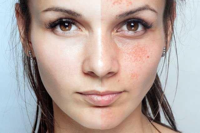 karbonatın cilde faydaları